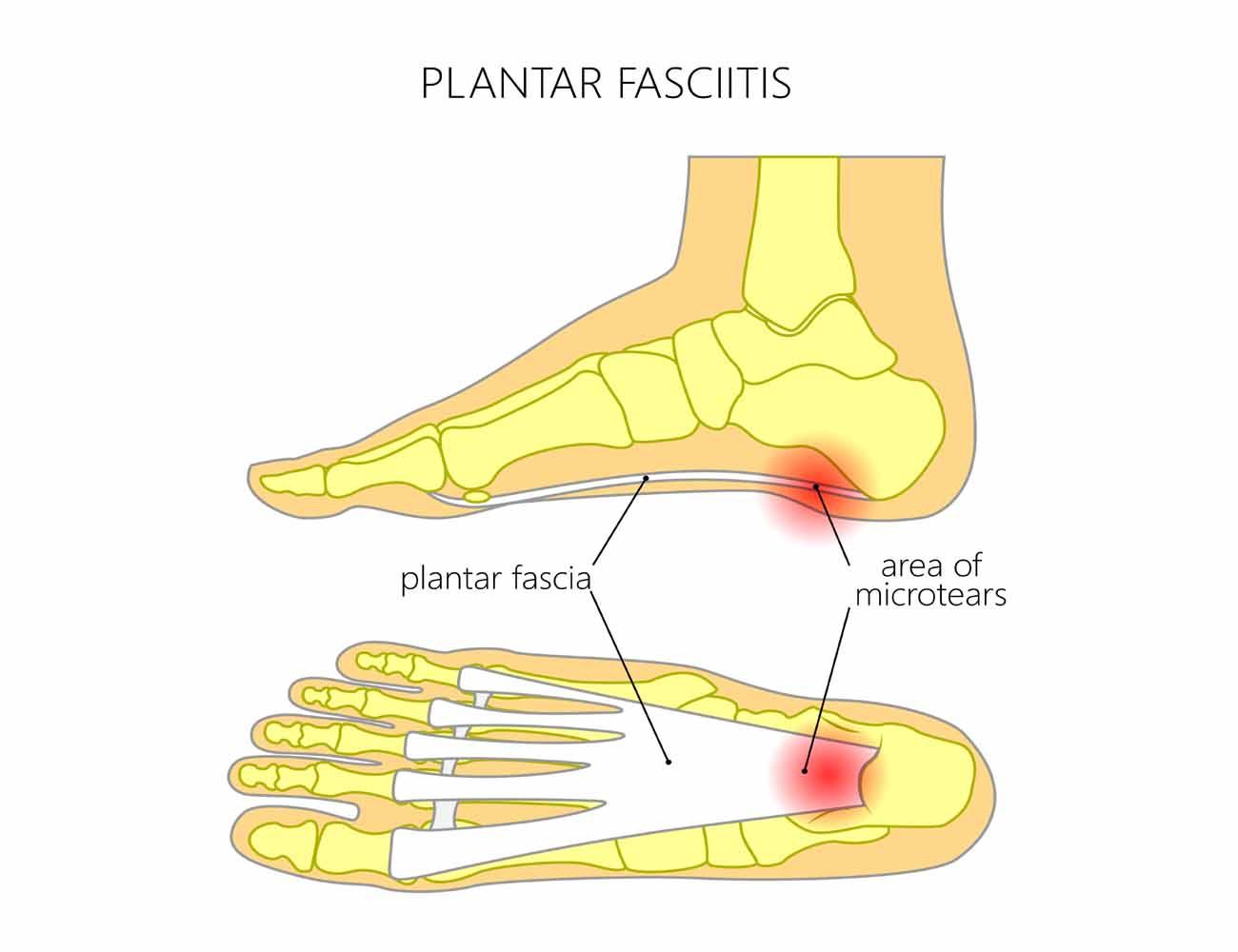 graphic about Plantar Fasciitis Exercises Printable titled Plantar Fasciitis Kiva Therapeutics