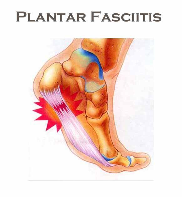 Plantar Fasciitis Kiva Therapeutics